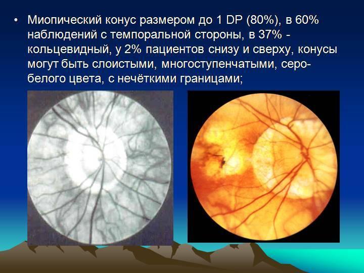 Миопическая болезнь - лечение глаз