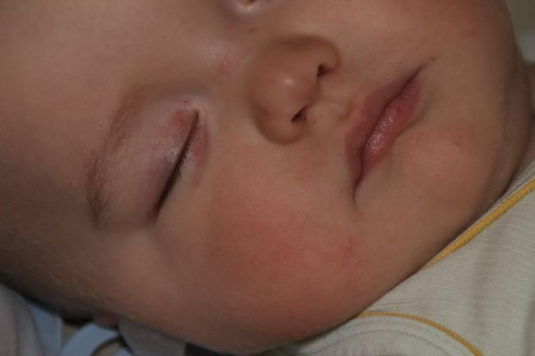 Почему появляются сосудистые звездочки на лице у ребенка как их убрать