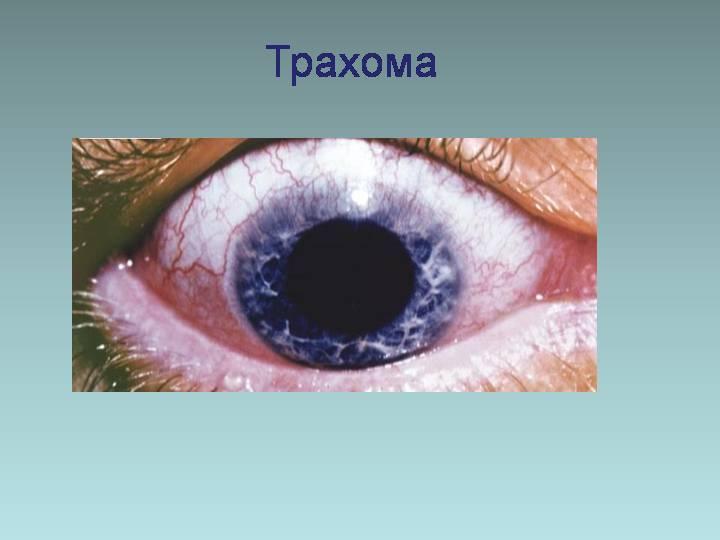 Трахома глаз: фото, симптомы, лечение, возбудитель