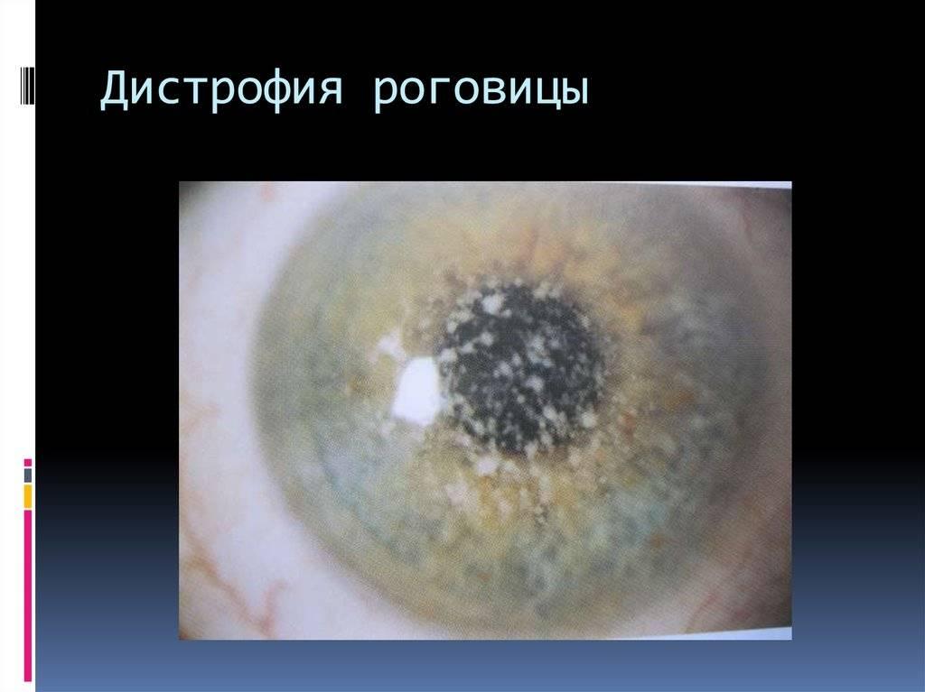 Эндотелиальная дистрофия роговицы глаза (синдром фукса)