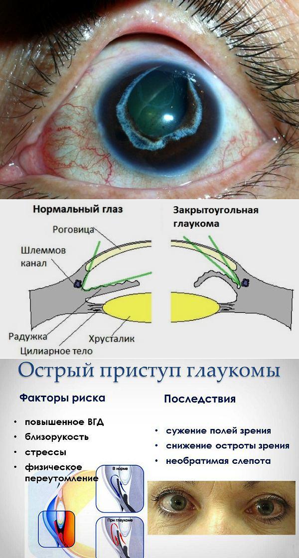 Факторы развития, симптомы и лечение закрытоугольной глаукомы