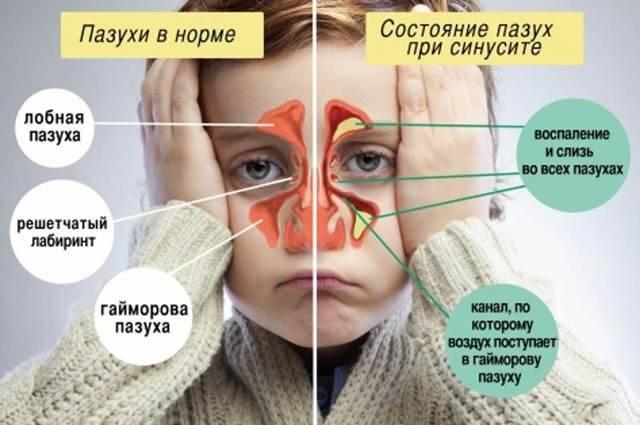 У ребенка гноятся глаза: что делать, если гной, чем лечить, если загноился глазик