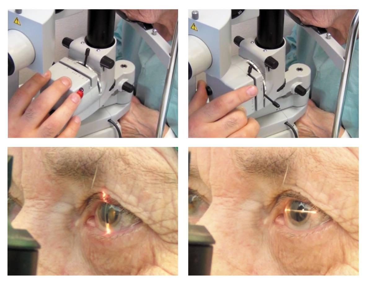 Катаракта глаза: причины, симптомы, лечение и профилактика, что это такое, код по мкб-10, помутнение хрусталика у взрослых, фото