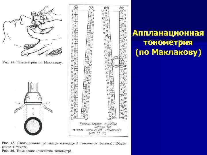 Тонометрия по маклакову: измерение внутриглазного давления бесконтактная и с грузиками, прибор тонометр, норма