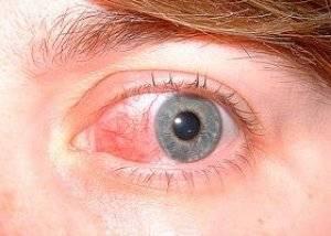Склерит глаза - причины возникновения и методы диагностики