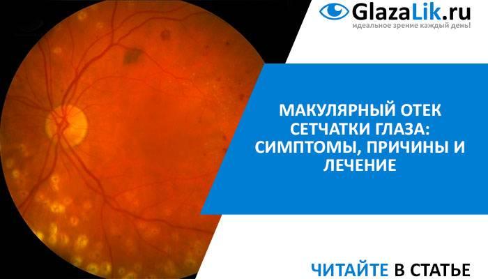 Макулярный отек сетчатки глаза: причины, симптомы, лечение, прогноз