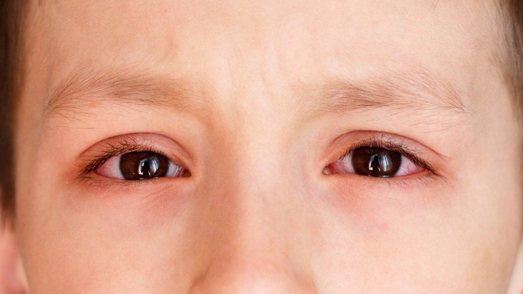 Опасен ли бактериальный конъюнктивит у детей? лечение заболевания в домашних условиях