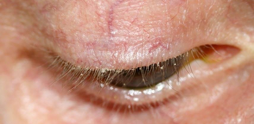 Блефарит: симптомы и лечение у детей, народные способы лечения
