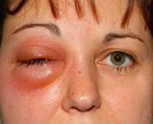 Что такое флегмона и почему появляется – причины и симптомы флегмоны