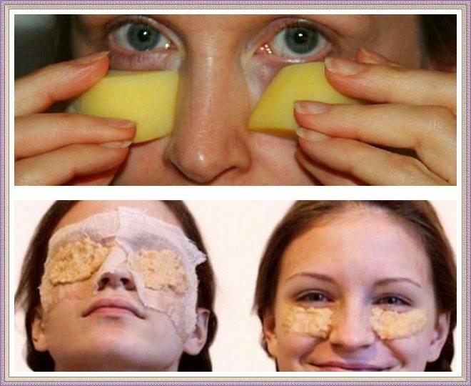 Как убрать синяк под глазом от удара: за 1 день в домашних условиях
