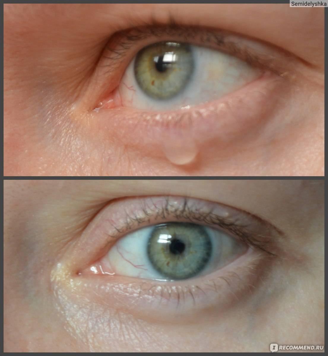 Можно ли носит линзы когда ячмень глазу