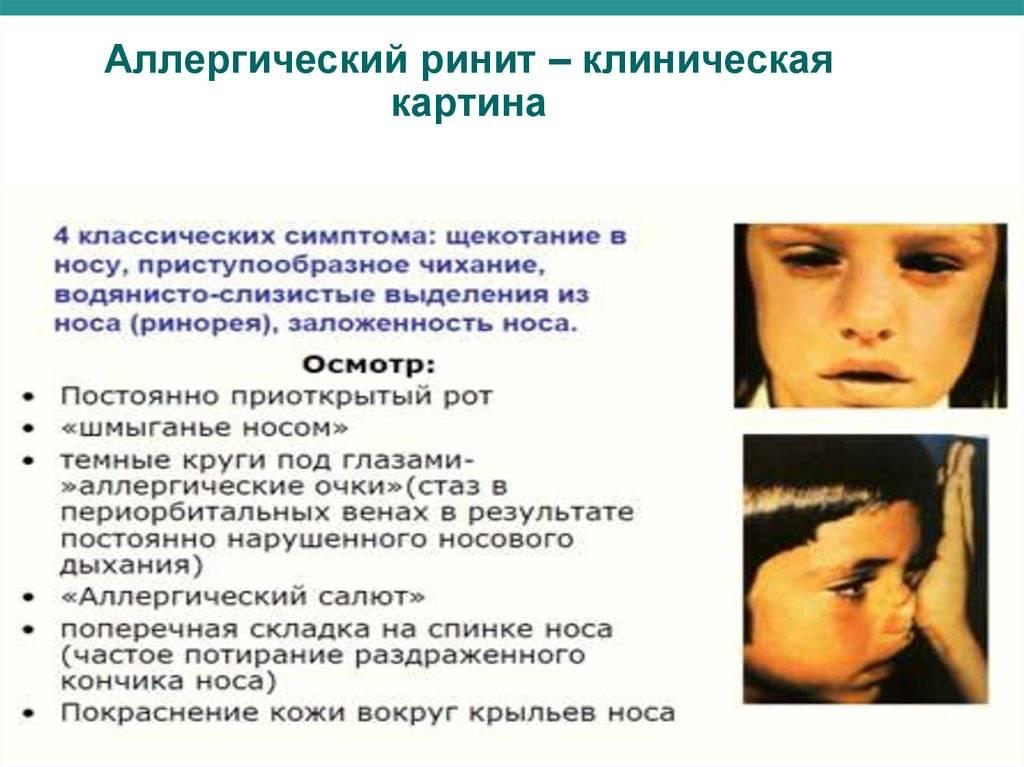 Светобоязнь: при каких заболеваниях бывает, симптомы