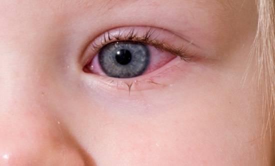Слезится один глаз у ребенка от 1 года