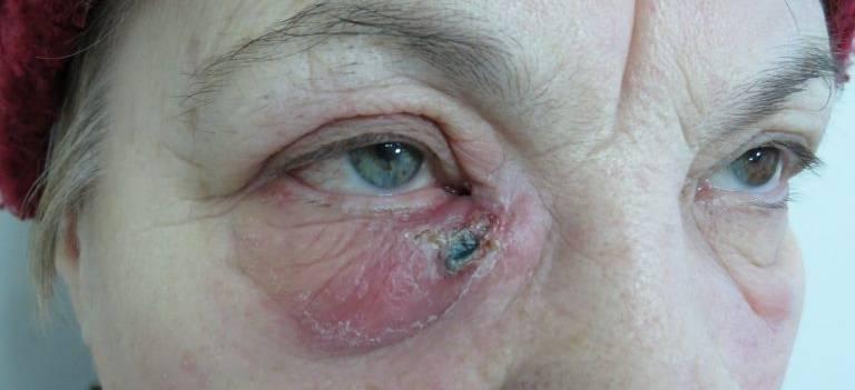 Лечение дакриоцистита, операции на слезоотводящих путях (дакриоцисториностомия)