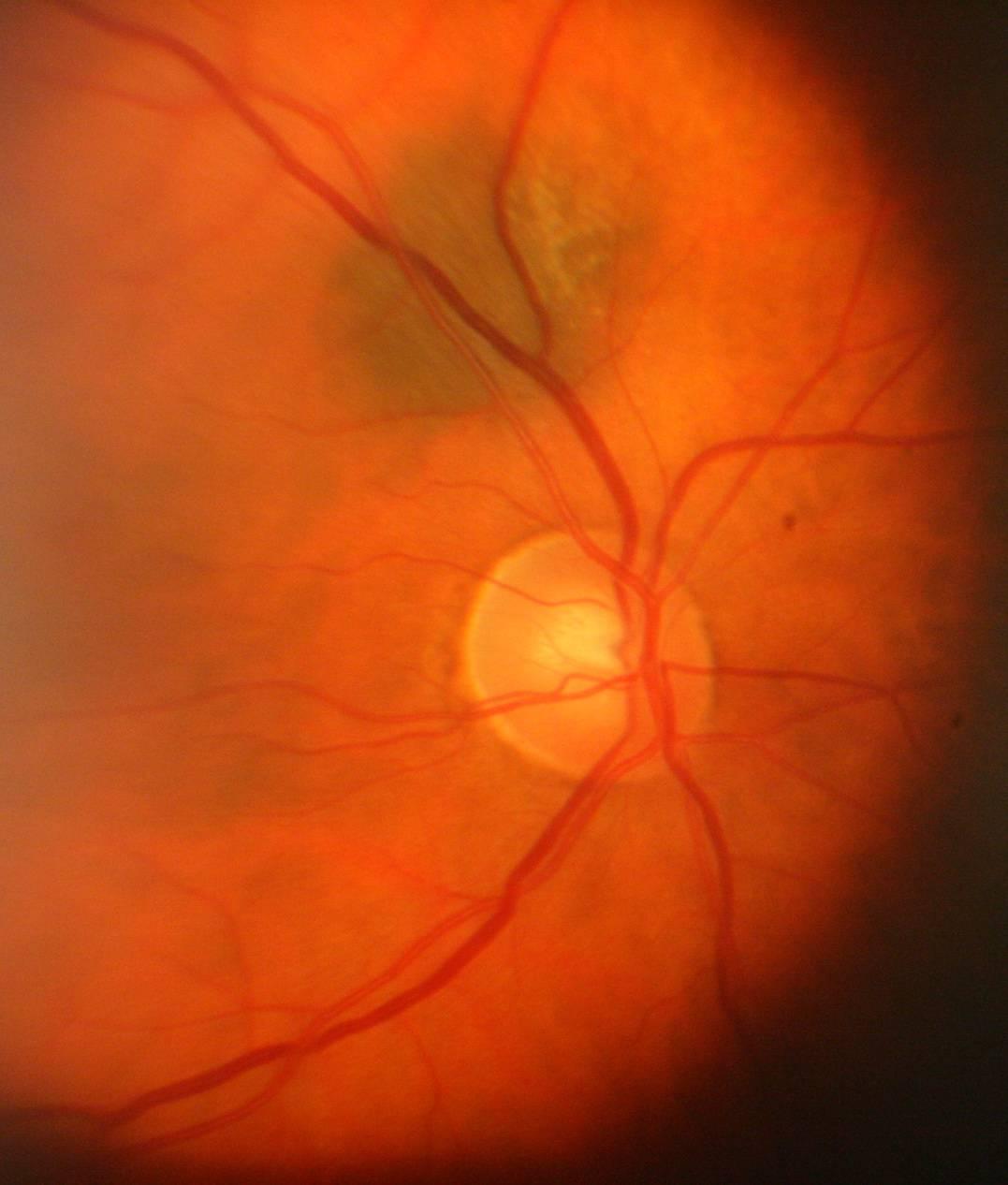 Невус хориоидеи глаза что это - все о здоровье