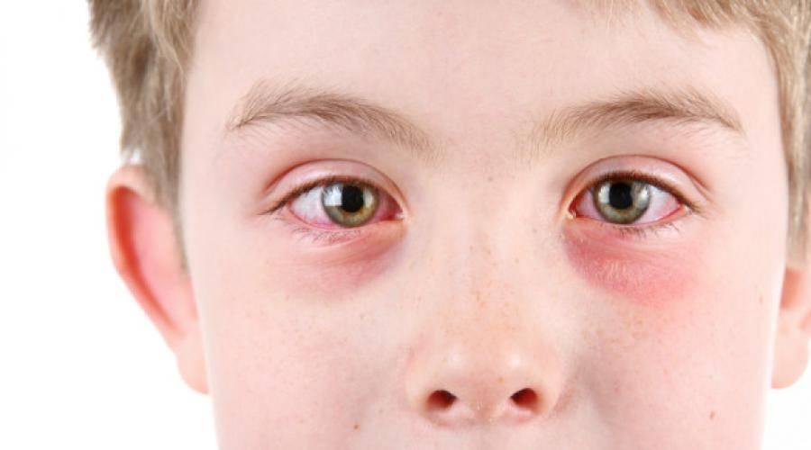 Воспалился глаз у ребенка - что делать