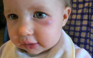 Красные круги под глазами у ребенка: причины, лечение комаровский