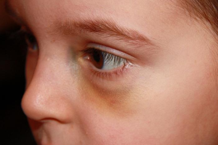 Синяки под глазами красные. красные синяки под глазами у ребенка: причину ищите в аллергии   школа красоты