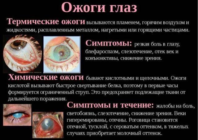 Как быстро и правильно вылечить химический ожог глаза