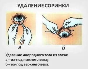 Как вытащить соринку из глаза в домашних условиях