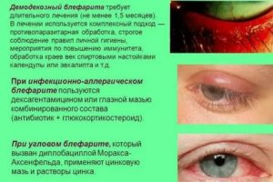 Особенности блефарита. общие принципы лечения блефарита. лечение.