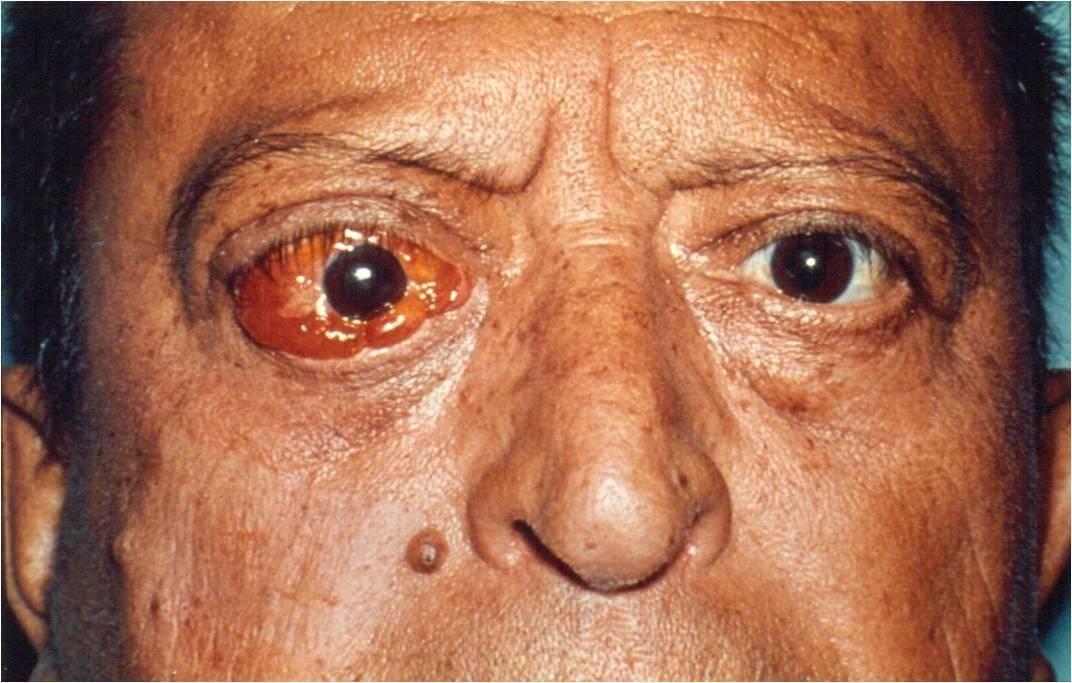 Рак глаз у детей: первые симптомы сетчатки глазного яблока, прогнозы лечится или нет
