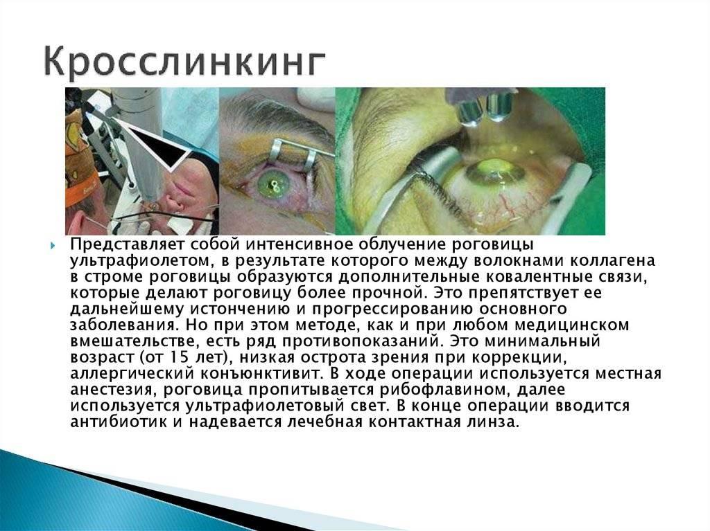 Кросслинкинг роговицы глаза: описание, ход операции, возможные осложнения и восстановление