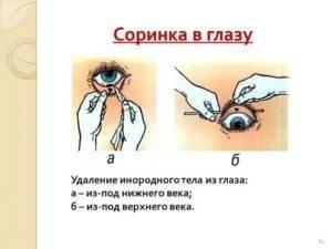 Ношение контактных линз: правила и рекомендации