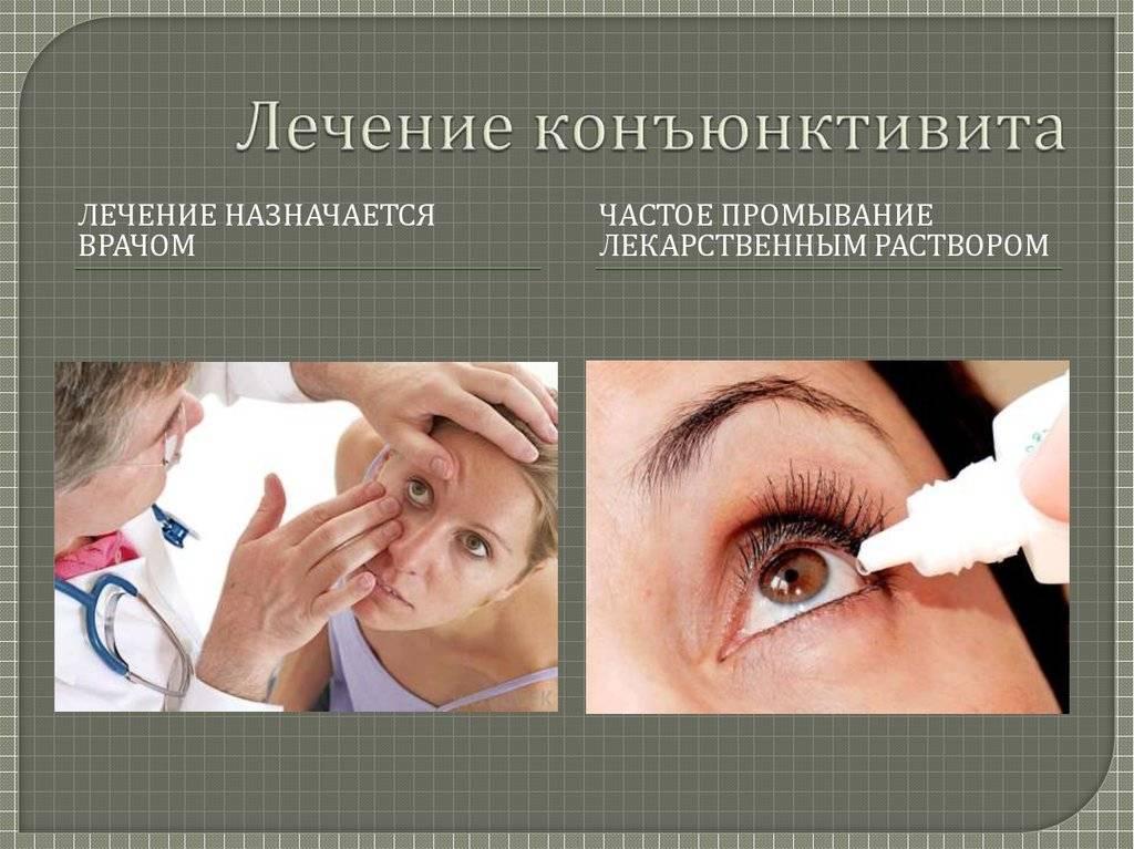 Конъюнктивит — фото, признаки, симптомы и лечение конъюнктивита глаз у взрослых