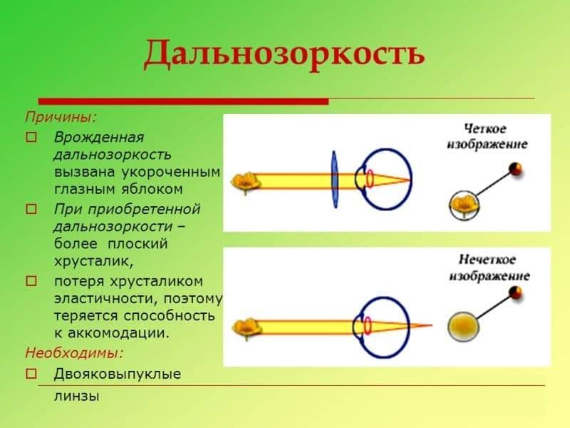 Гиперметропия (дальнозоркость) слабой степени: что это такое