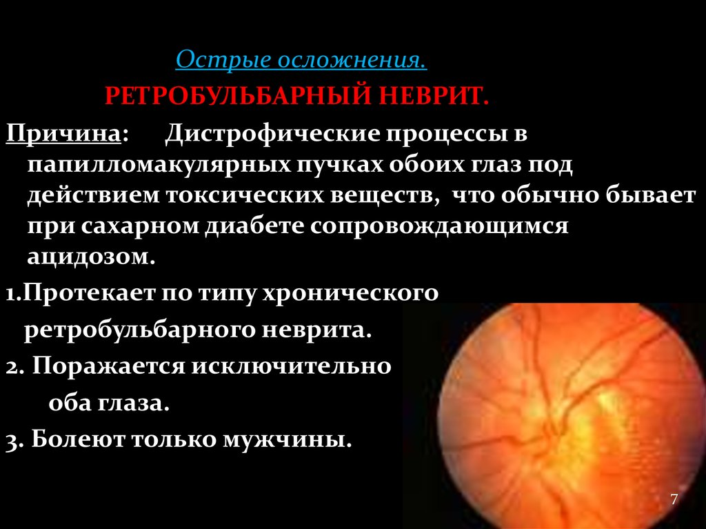"""Ретробульбарный неврит: как лечить - """"здоровое око"""""""