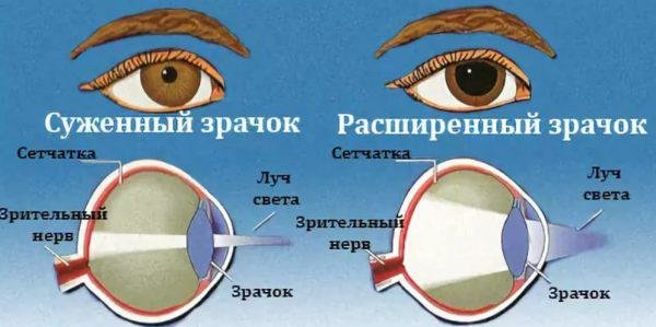 Зрачки разного размера (анизокория)