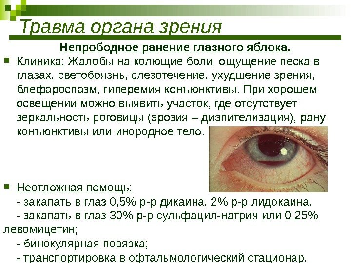 Причины симптомы и лечение электроофтальмии - мед портал tvoiamedkarta.ru