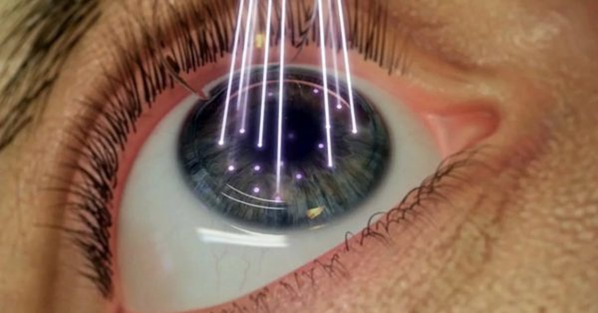 Кому поможет лазерная коррекция зрения