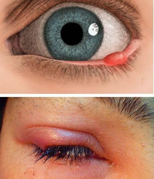 Заразен ли ячмень на глазу: гигиена при заболевании