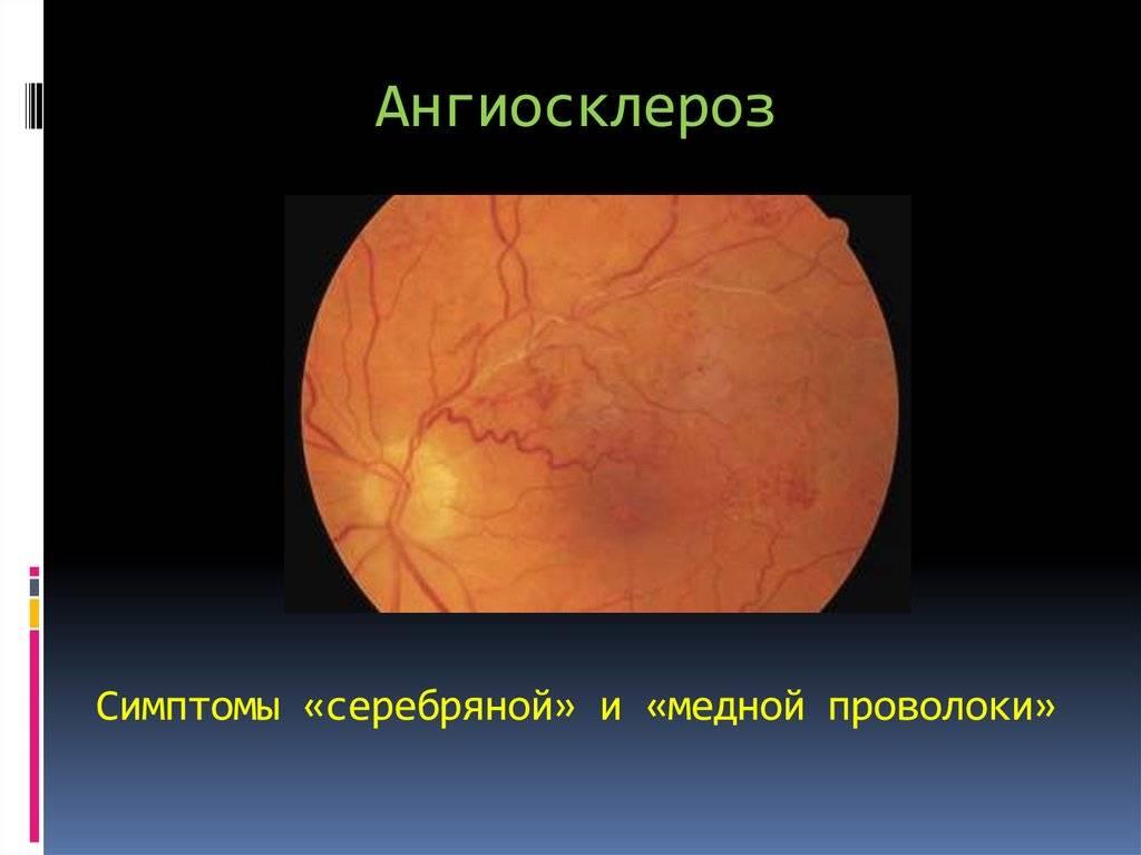 Гипертонический ангиосклероз сетчатки глаза: что это такое и как необходимо его лечить?