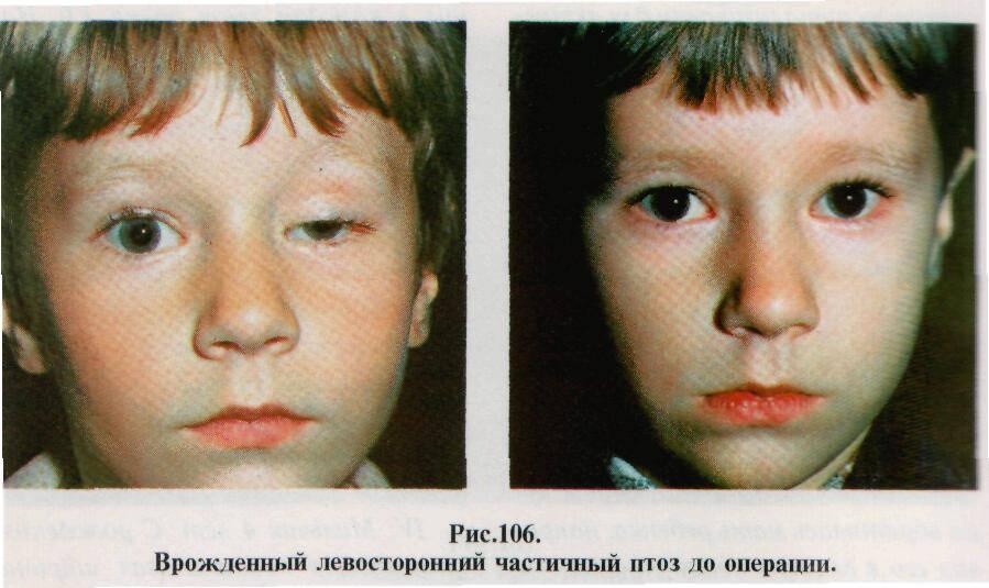 Блефарофимоз у детей - о вашем здоровье
