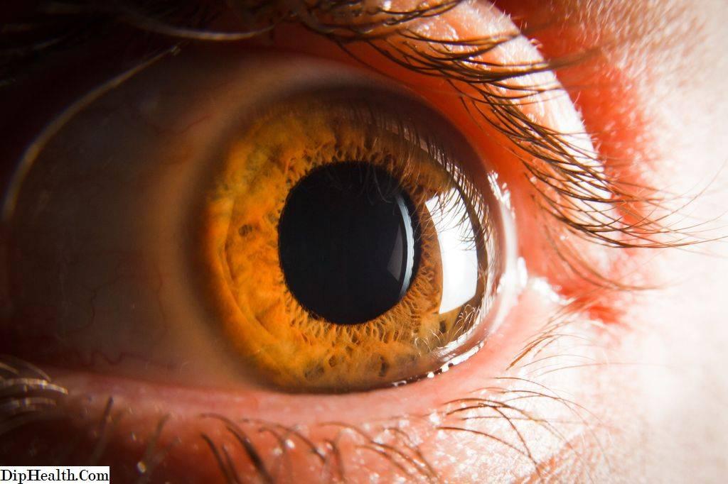 Причины появления и методы лечения эписклерита глаз