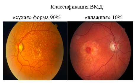 Макулодистрофия сетчатки глаза: симптомы, диагностика, лечение