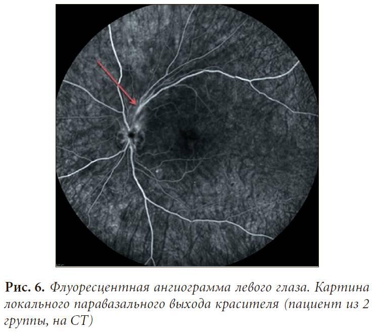 Флуоресцентная ангиография глазного дна: что это такое, противопоказания, отзывы