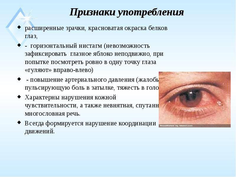 Расширенные зрачки — симптомы и причины расширенных зрачков, мнение экспертов - proinfekcii.ru