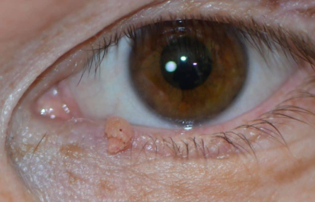 Нарост на веке глаза: лечение кисты, бородавок, папиллом и других образований, удаление, фото новообразований у человека