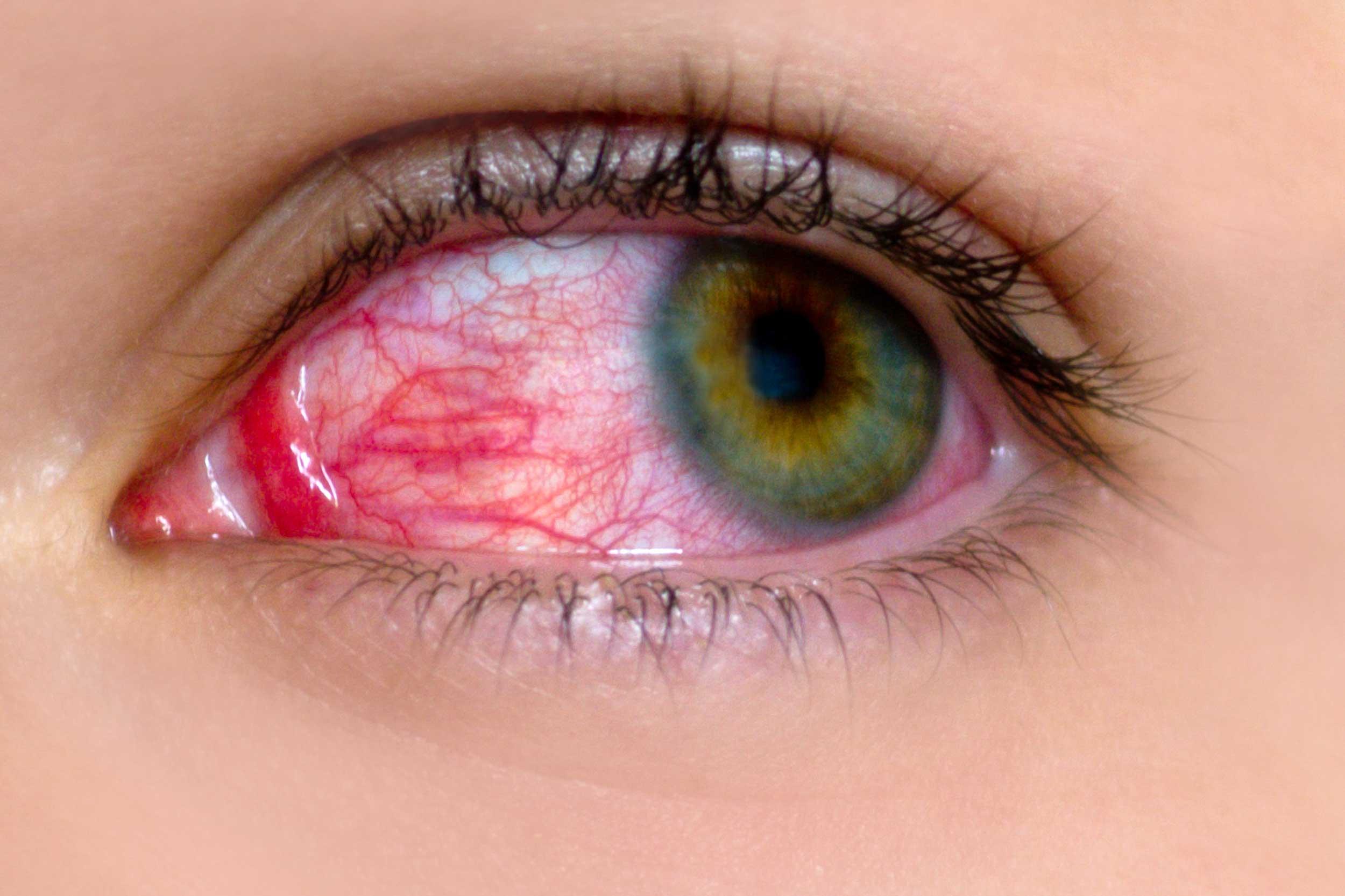 Что делать, если болят глаза от компьютера, объяснили эксперты