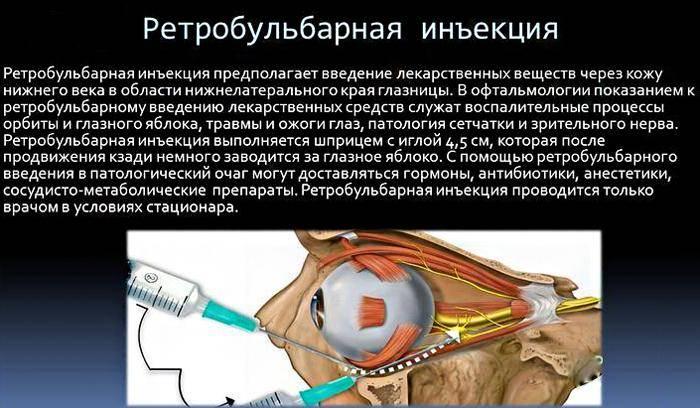 Гиперемия конъюнктивы глазного яблока