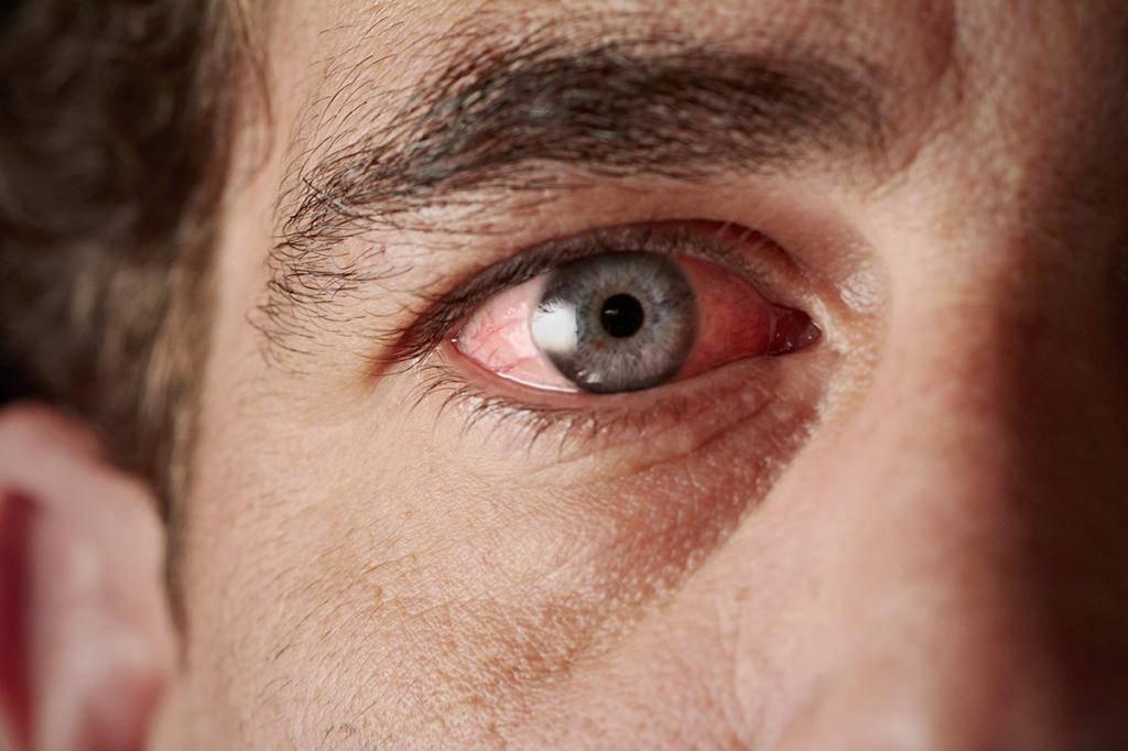 Слезятся глаза на улице - причины, что делать, как лечить