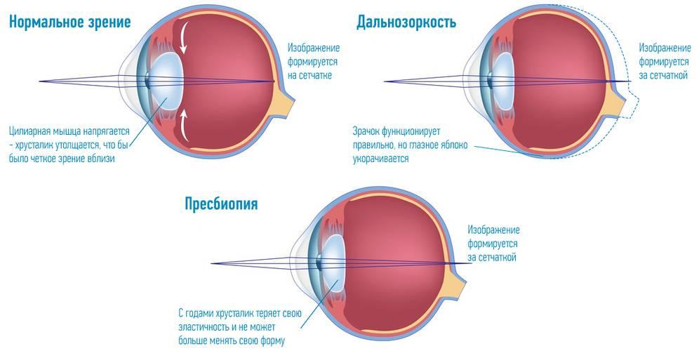 Близорукость: это минус или плюс, какие очки и линзы применяют при миопии