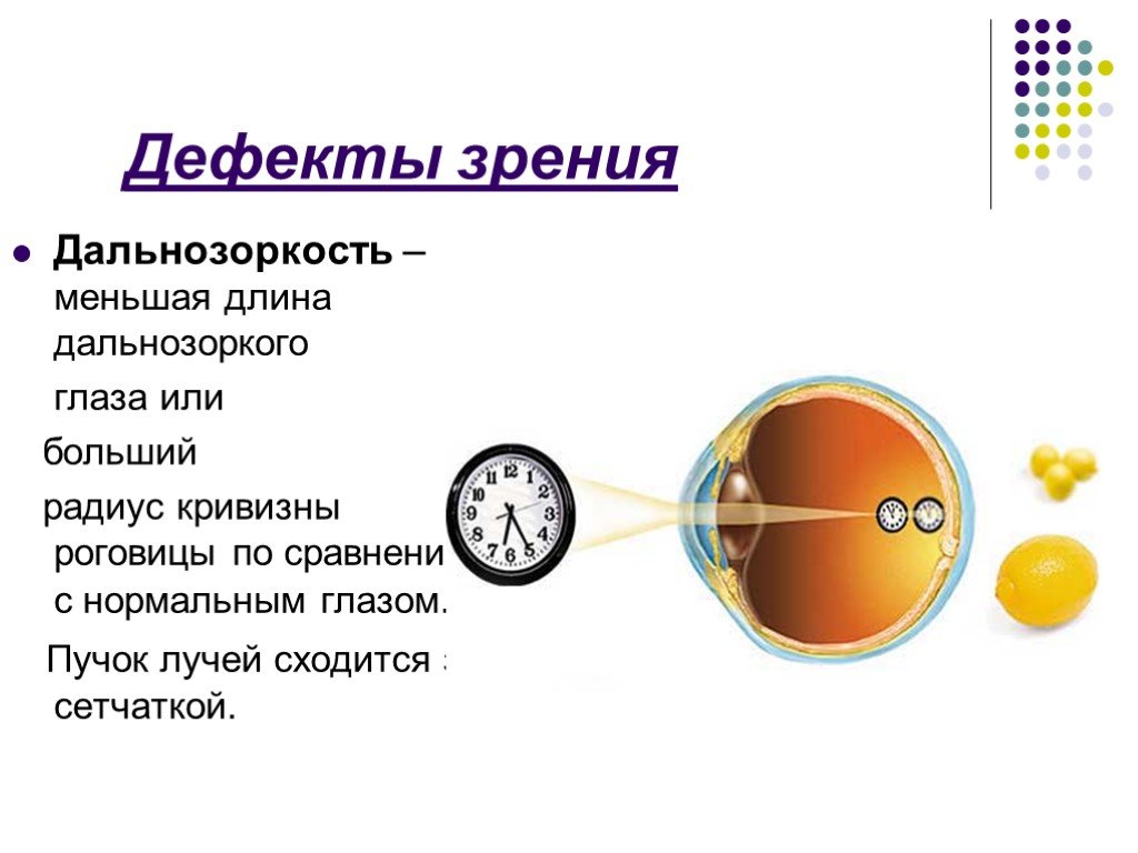 Нарушение цветового зрения: проверка зрения на цветовосприятие, симптомы и признаки, виды болезни и способы коррекции