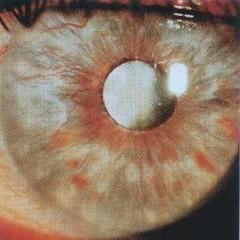 Восстановление зрения и лечение перезрелой катаракты oculistic.ru восстановление зрения и лечение перезрелой катаракты