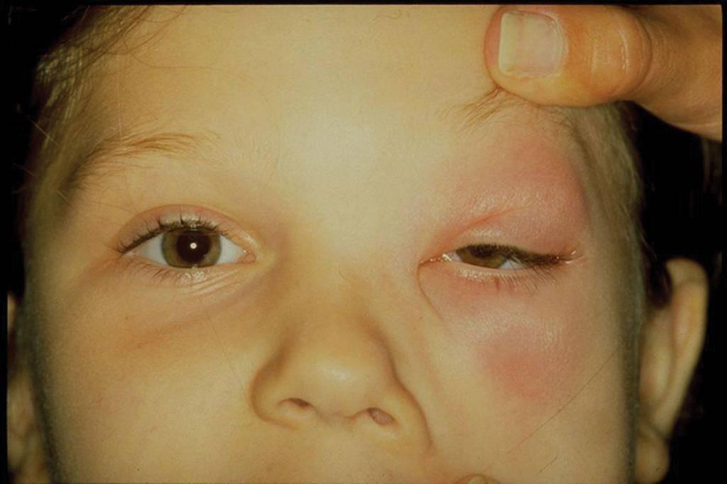 Опухло нижнее веко на одном глазу: причины и лечение отека