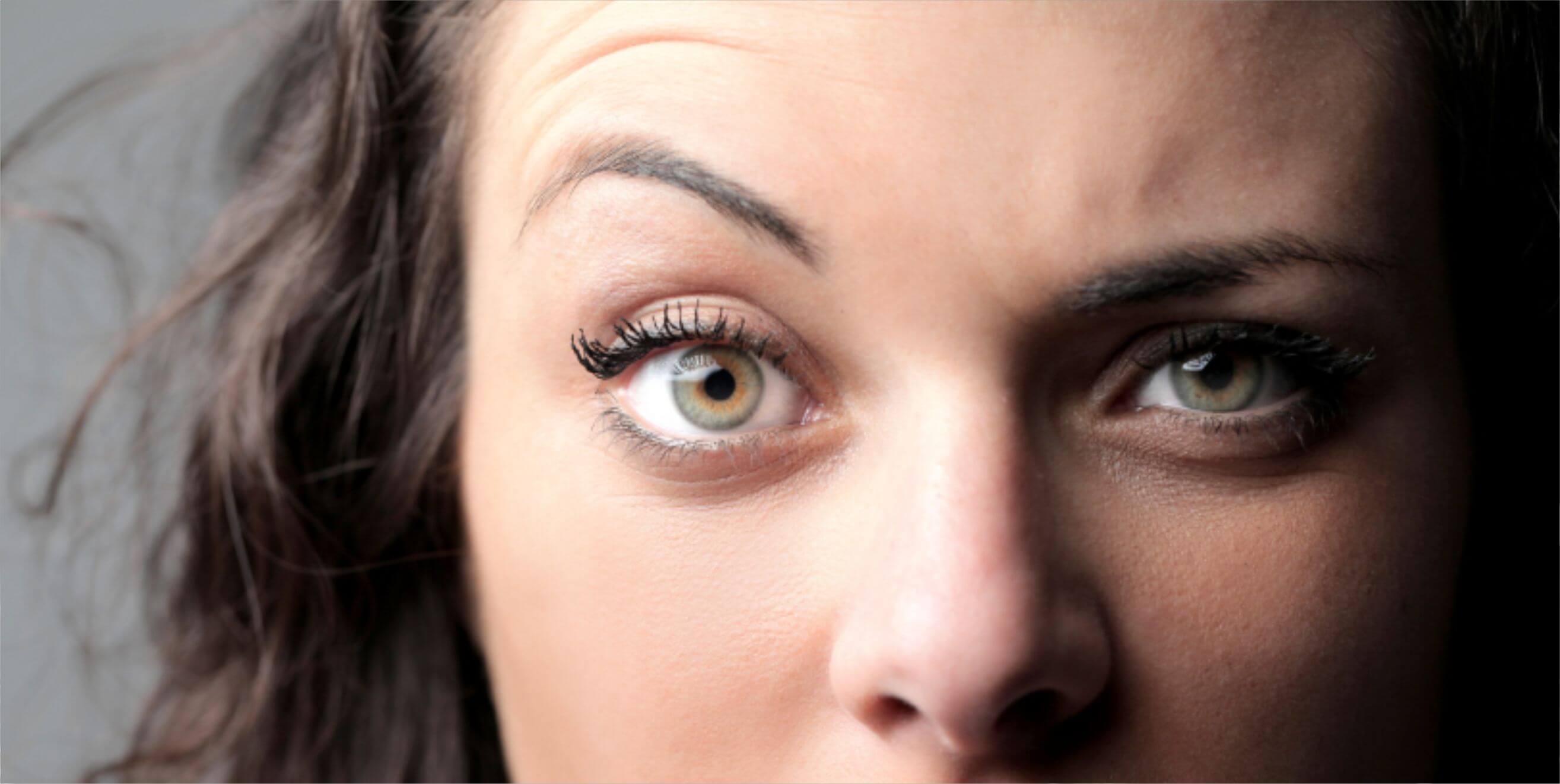 Один глаз выше другого причины как исправить дефект